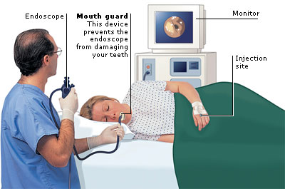 endoscopy copyright aviva